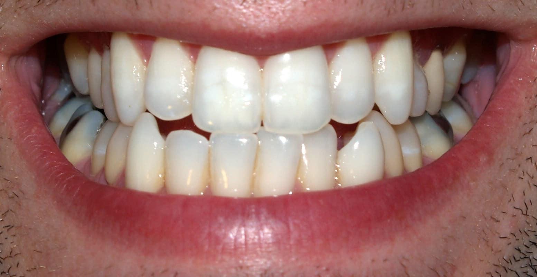 Carillas dentales para niños