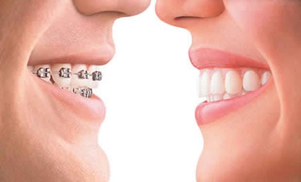 ortodoncia pequeña