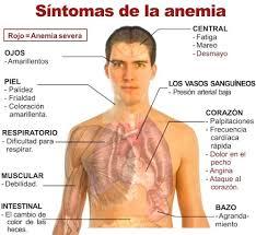 sintomas anemia