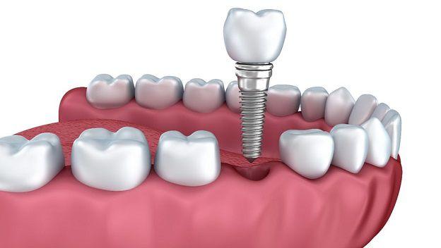 calidad y altos servicios sobre dentistas en lleida