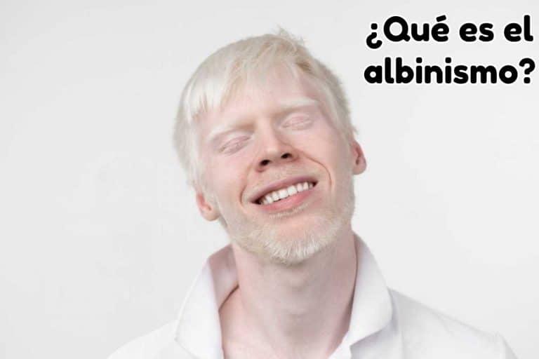 persona-albina-con-pelo-y-cara-de-color-blanco