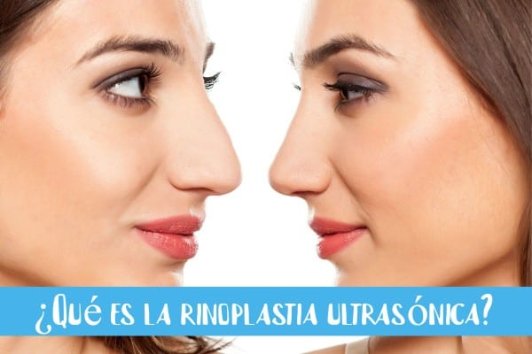 imagen-de-una-rinoplastia-en-una-mujer